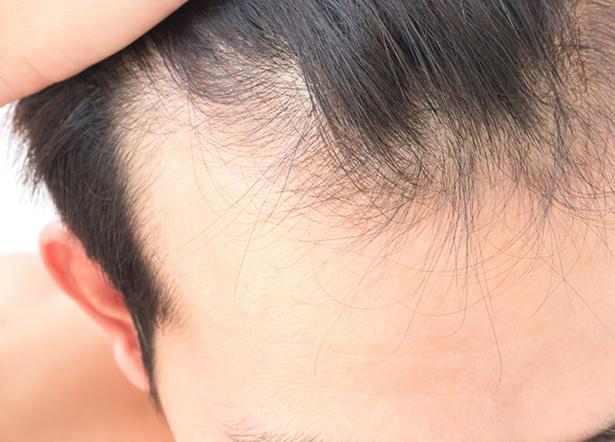 PRP cheveux pour traiter l'alopécie à Grenoble